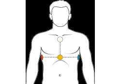 Posizionamento elettrodi ECG Medea Telemedicina