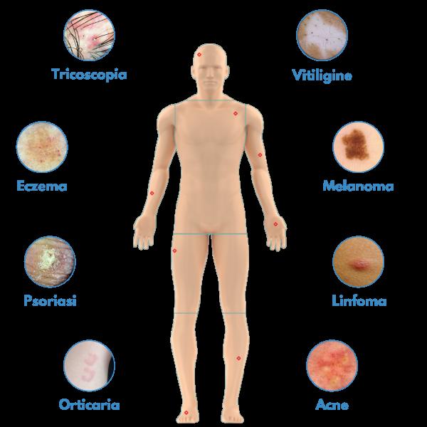 Patologie pelle Medea Telemedicina